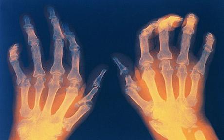 Apa itu Artritis Tylenol? menggunakan suplemen ini dapat