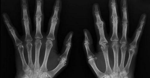 Apa itu Artritis Tylenol? Dokter Anda mungkin meresepkan