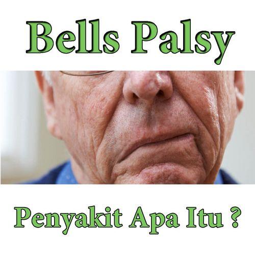 Apa Kemungkinan Penyebab Bell Palsy? telah terpapar terlalu banyak