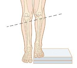 Dismetria gerakan kaki