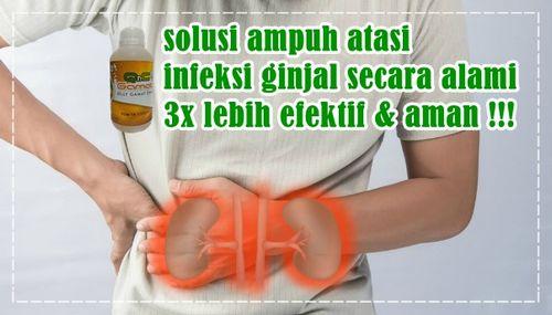 Gejala Infeksi Jamur - 3 Cara Efektif untuk Menyembuhkan yang dapat Anda