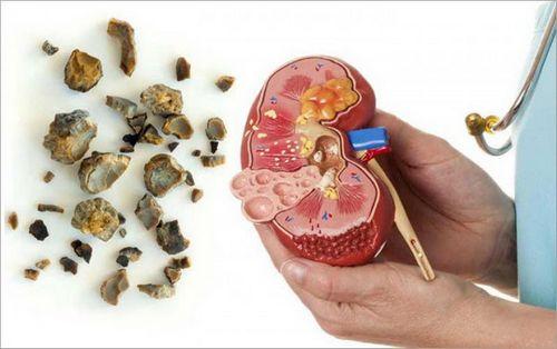 Memahami Gejala Batu Ginjal pembedahan mungkin