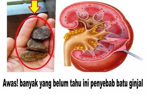 Memahami Gejala Batu Ginjal Jika Anda